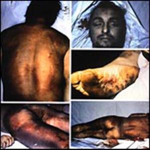 Muerte del etarra Arregui, tras ser torturado.